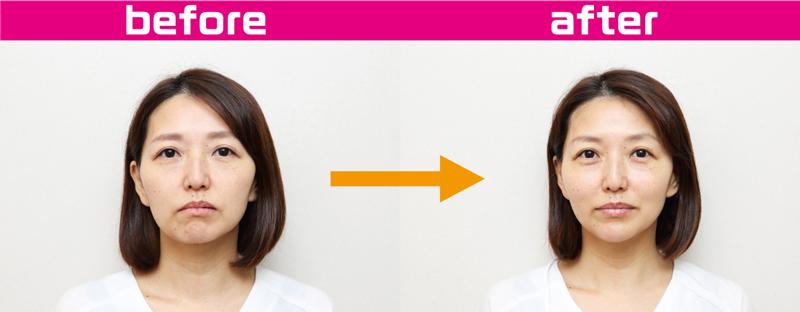 『サーマクール FLX』で治療を行う前の顔と受けた後の顔