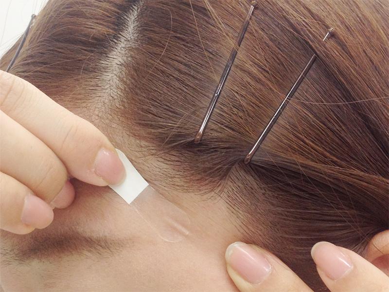 こめかみあたりの髪の毛の生え際ぎりぎりに整形テープを張っている女性