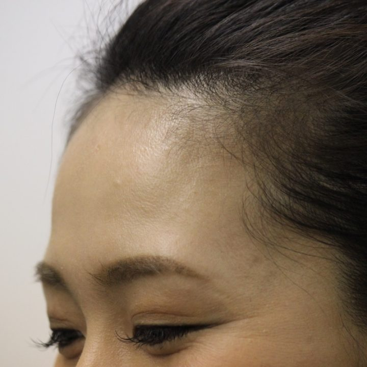 顔汗のイメージ画像