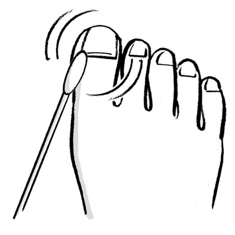 足の親指の爪の周りを綿棒できれいにしているイラスト