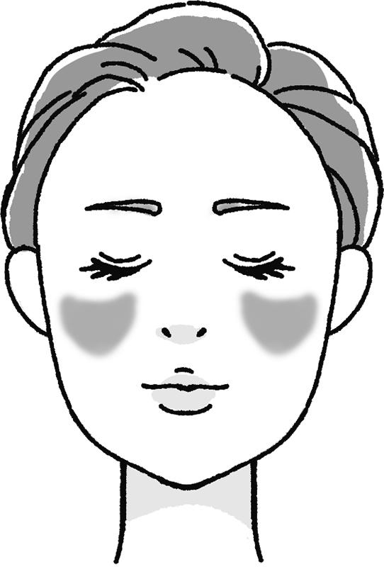 肝斑のある女性の顔のイラスト