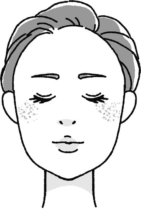 後天性真皮メラノサイトーシスのある女性の顔のイラスト