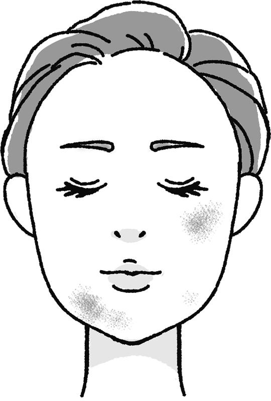 炎症性色素沈着のある女性の顔のイラスト