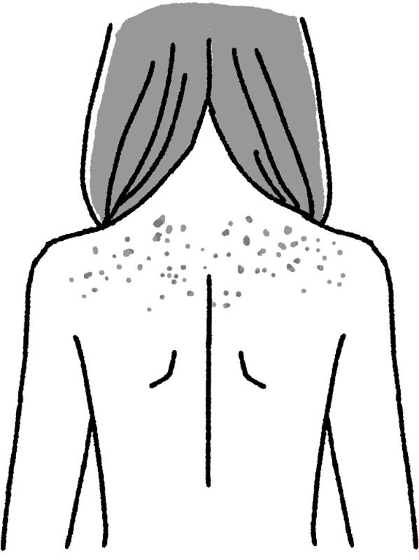 日焼けシミ(光線性花弁状色素斑)ができた女性の背中イラスト