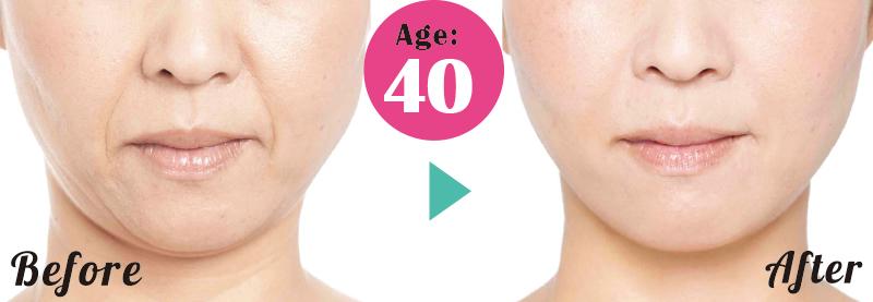 40才女性のサロン施術前と施術後にほうれい線が薄くなった変化画像