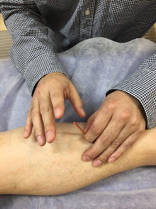 鍼の治療を受けるオバ記者