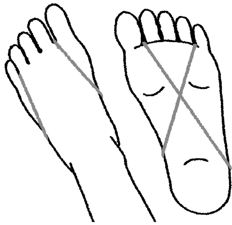 親指と小指に輪ゴムをかけた足の裏