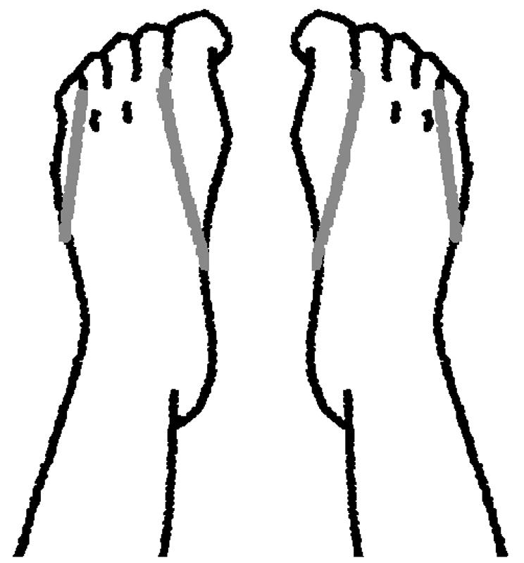 輪ゴムをかけた両脚の指を閉じる