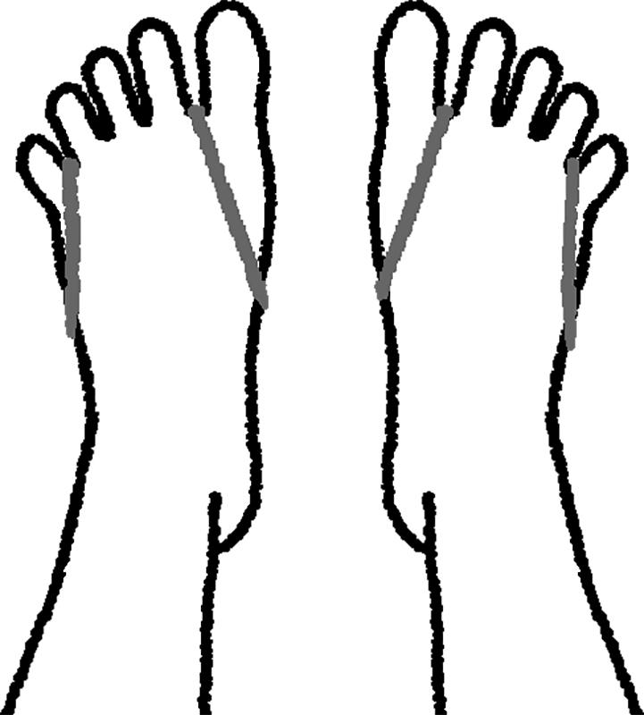 輪ゴムをかけた両脚の指をパーに開く