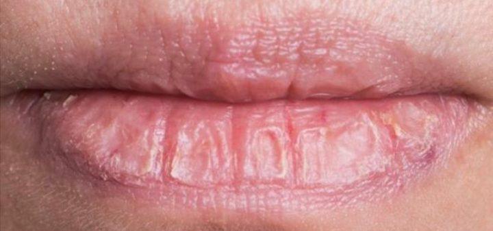 割れた唇の画像