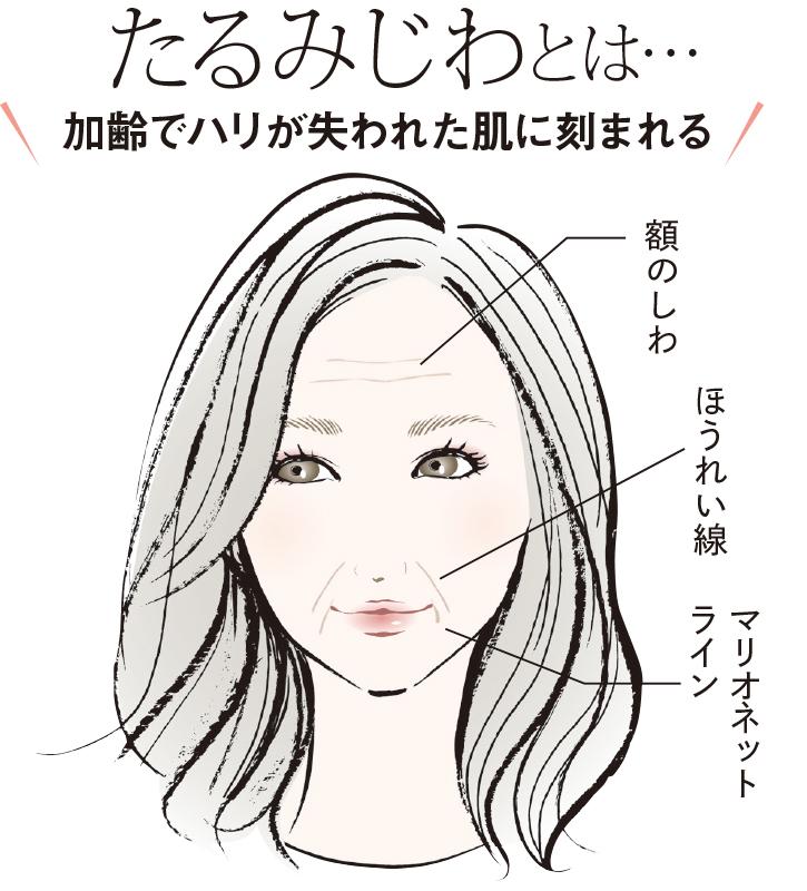 たるみじわ(額のしわ、ほうれい線、マリオネットライン)を描いた女性のイラスト