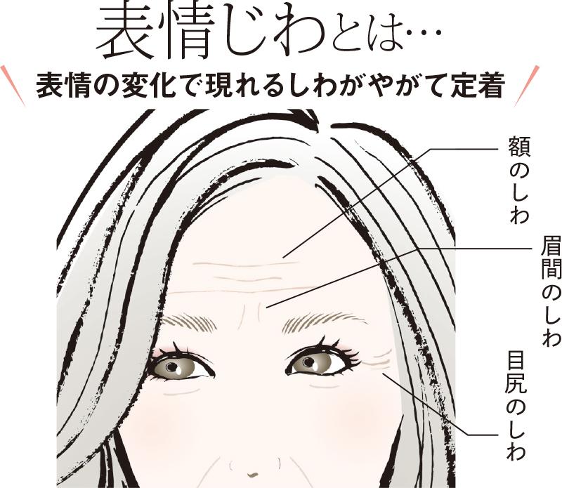 額、眉間、目尻の表情じわを記したイラスト