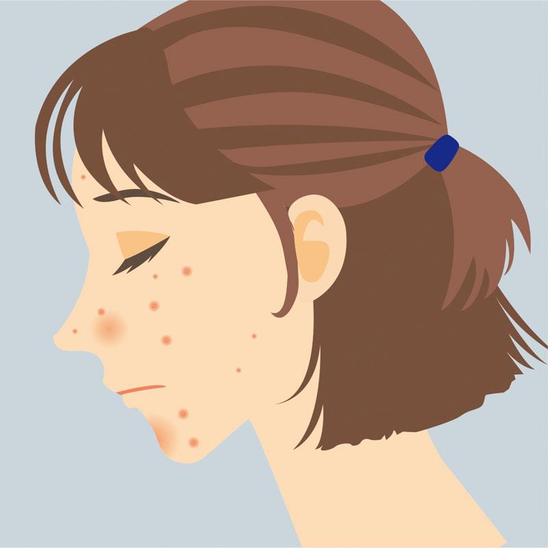 ニキビに悩む女性のイラスト