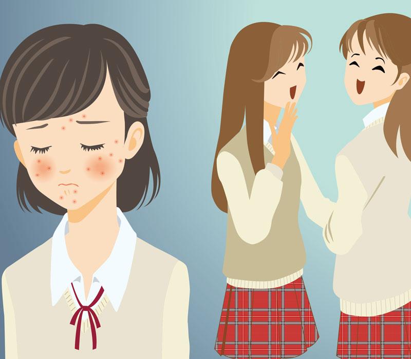 思春期にニキビに悩む女性のイラスト