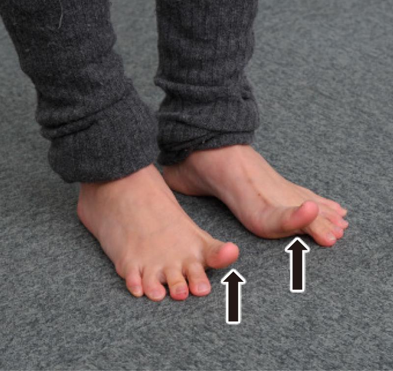 足裏を床につけ、4本の指は床につけたまま親指だけを持ち上げた足元写真