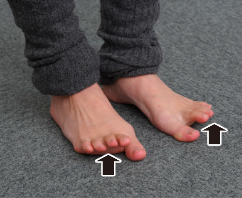 裸足で親指だけ床につけ、残り4本指を上に上げた足元写真