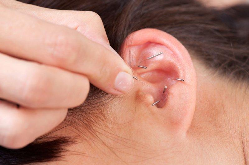 鍼をさした耳の画像