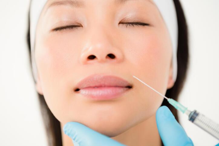 ヒアルロン酸注射を打たれようとしている女性の顔写真