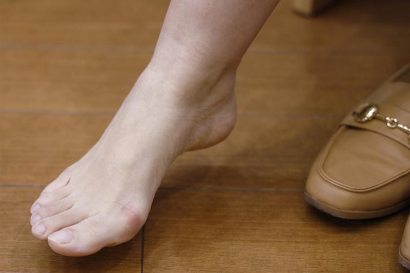 靴を脱いで外反母趾を見せている