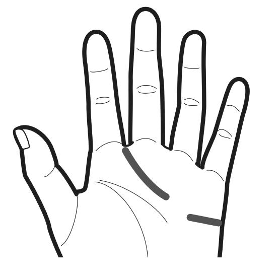 感情線が薬指の下で切れているのをイラストでわかりやすくしている