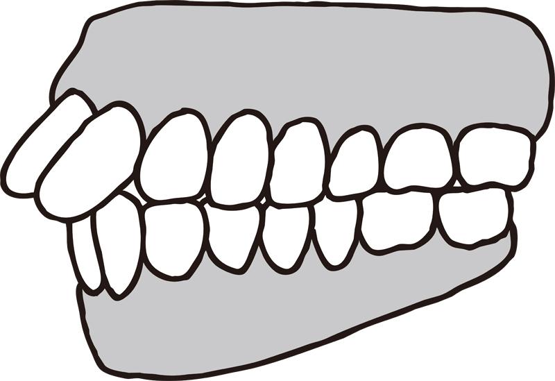 上顎前突の歯のイラスト
