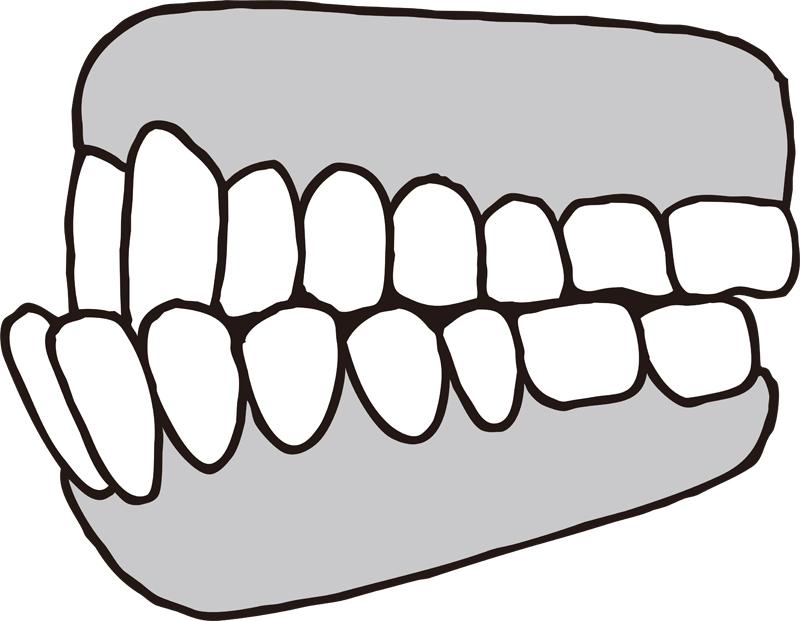 下顎前突の歯のイラスト