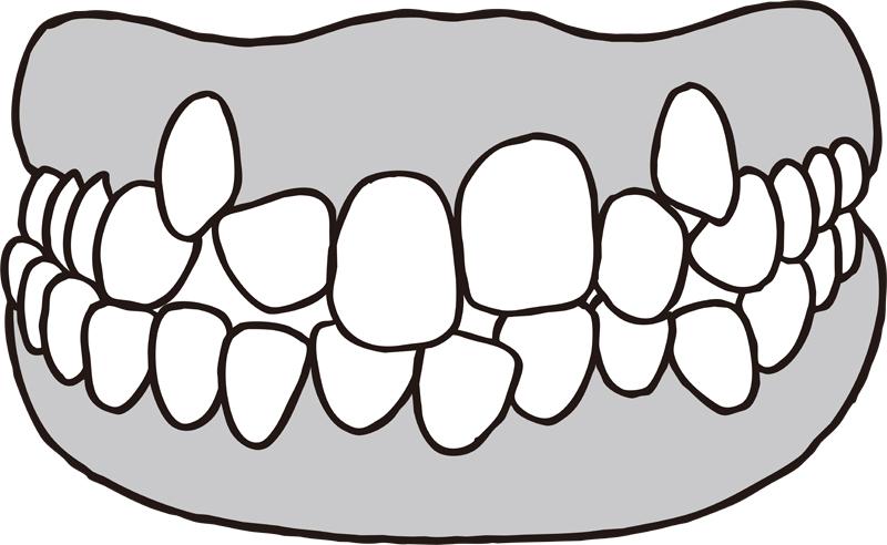 叢生の歯のイラスト