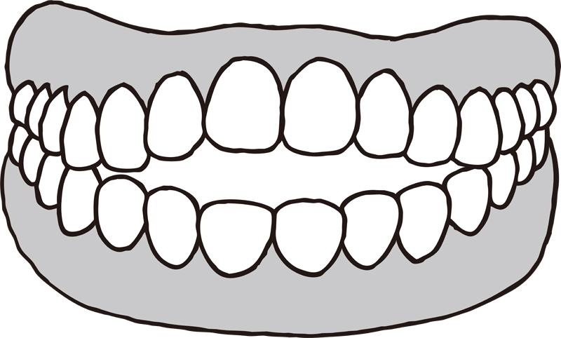 開咬の歯のイラスト