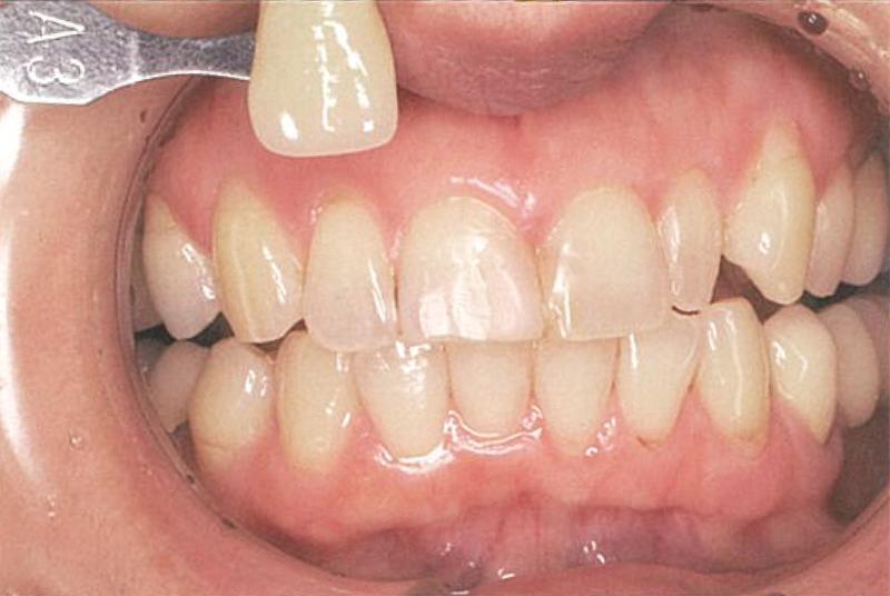 ホワイトニングをする前の歯の画像