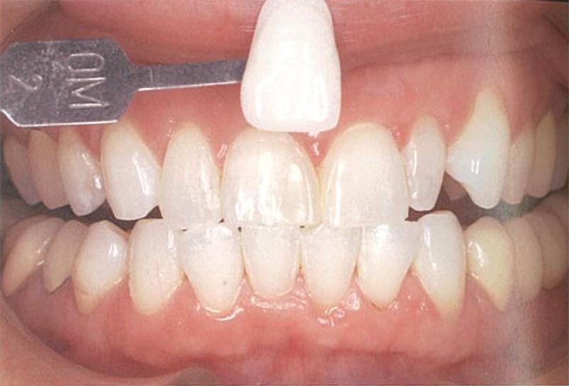 ホワイトニングをした後の歯の画像