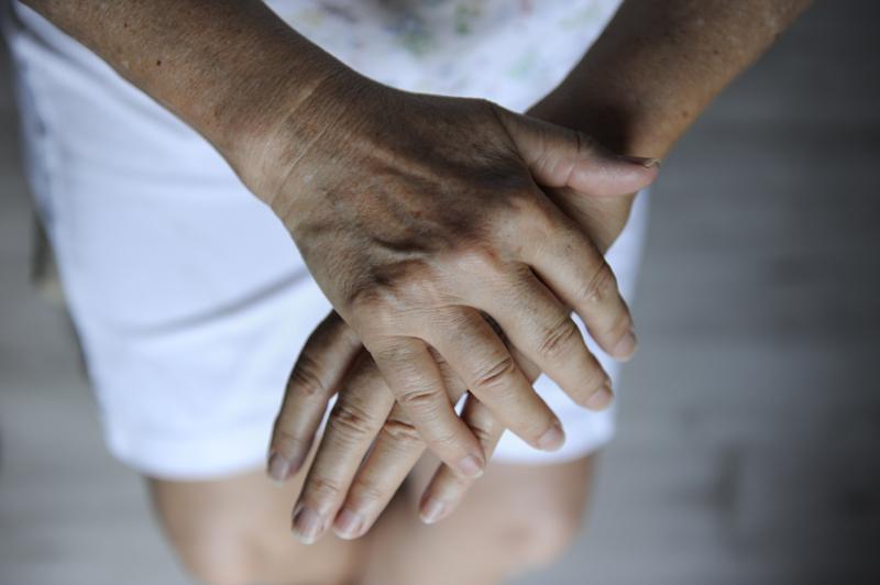 血管が浮き出た女性の手元