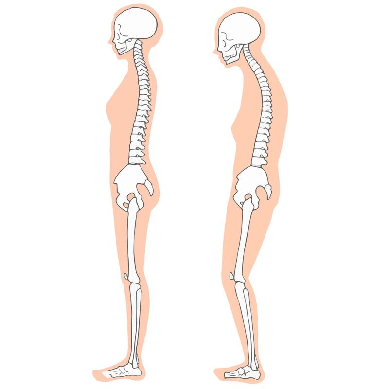 いい姿勢と悪い姿勢を骨で表したイラスト