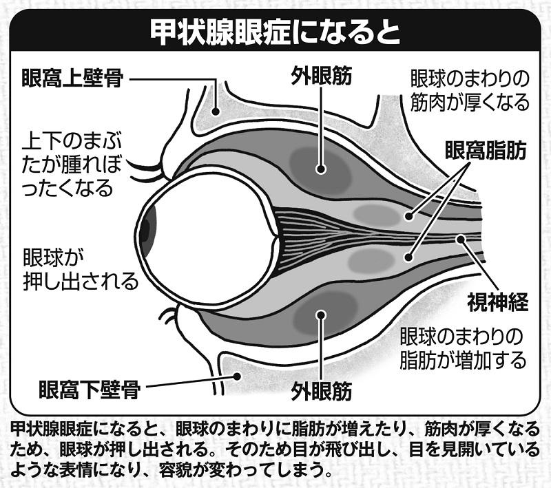甲状腺眼症になるとどうなるか、図解