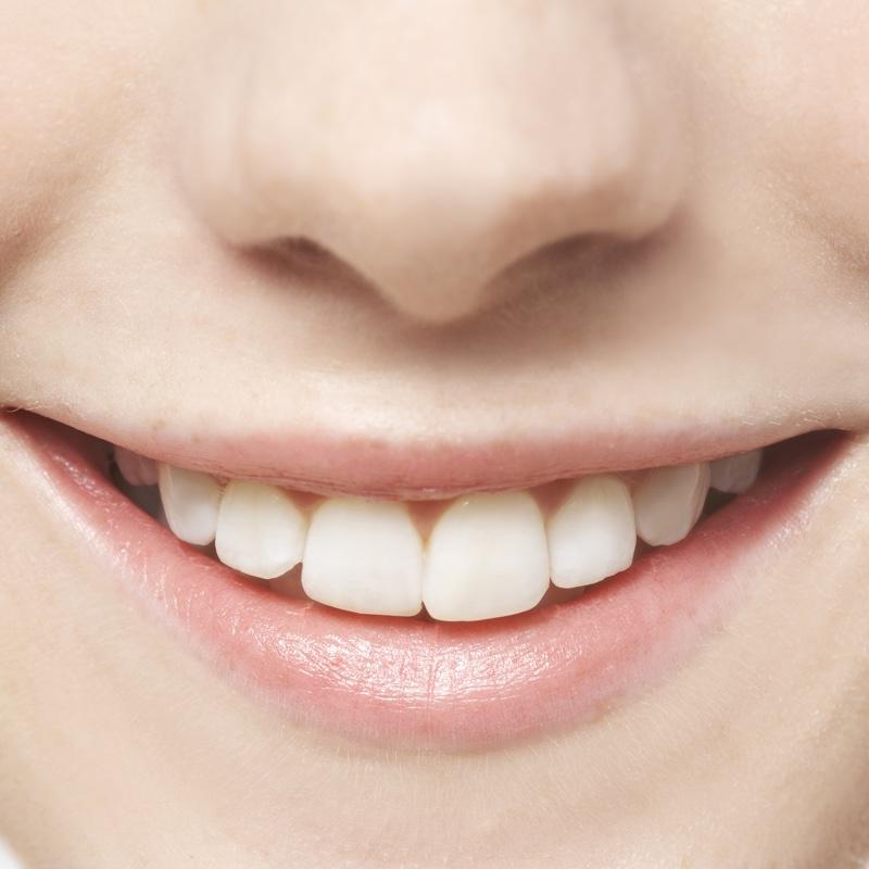 歯が着色しやすい人はこんな人!着色や黄ばみの原因と日頃できる簡単ケア (1/1)| 8760 by postseven