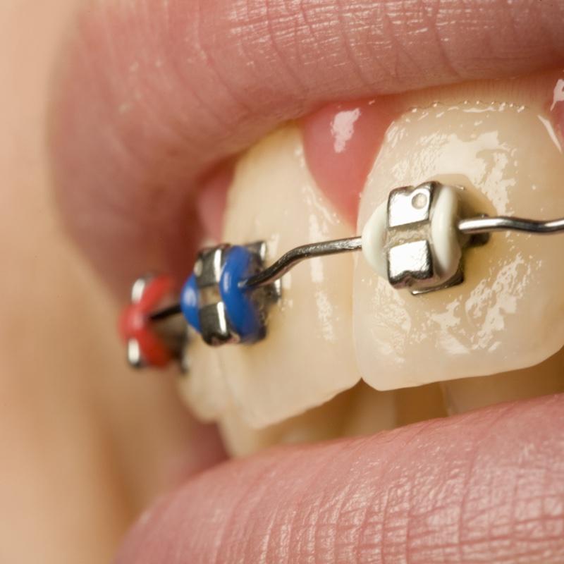 ブラケットをつけた歯