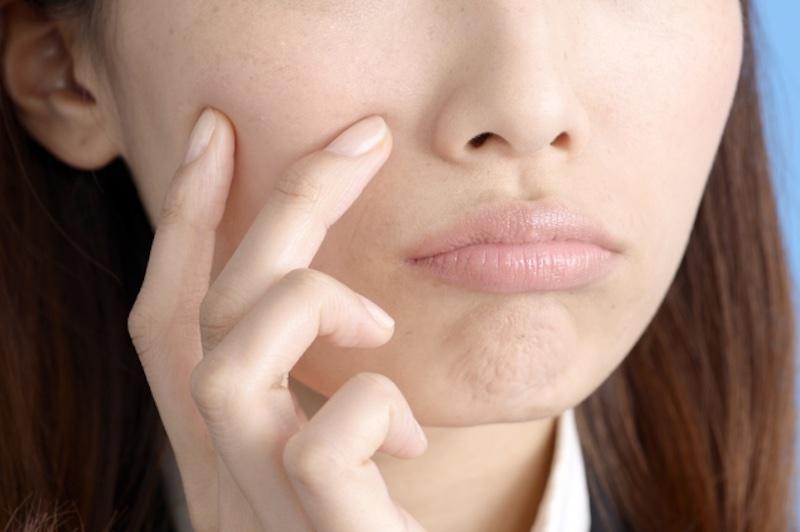 不満そうに頬を触る女性